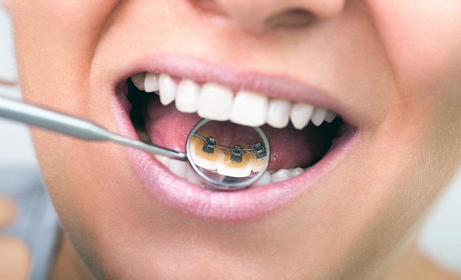 Tratamientos de ortodoncia más estéticos-251-esmiestilo
