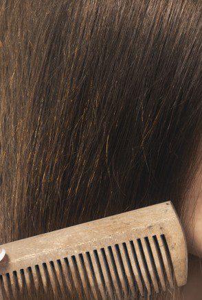 Tipos de alopecia más comunes en mujeres