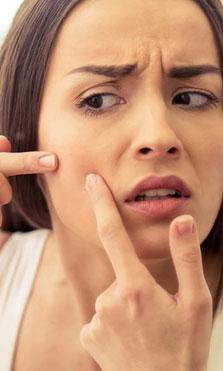 Tengo más de 25 años y tengo acné, ¿cómo me deshago de él?